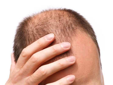 Managing Hair Loss Due to Telogen Effluvium